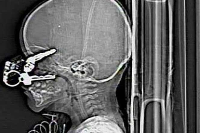 Exames de raios-X incríveis que você não vai acreditar que são reais