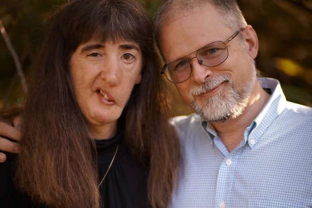 Mulher que teve seu rosto deformado quando criança decide não mais passar por cirurgias corretivas