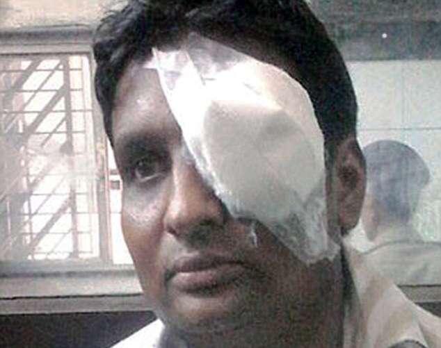 Homem ferido por explosão de celular