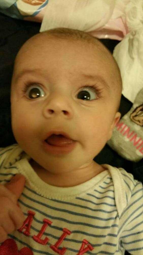 Bebê é diagnosticado com câncer raro no olho após mãe postar foto dele no Facebook