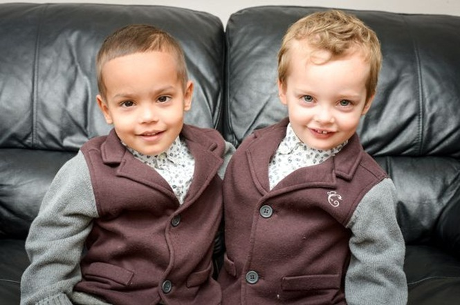 Gêmeos nascidos idênticos sofrem rara condição e mudam características após alguns meses