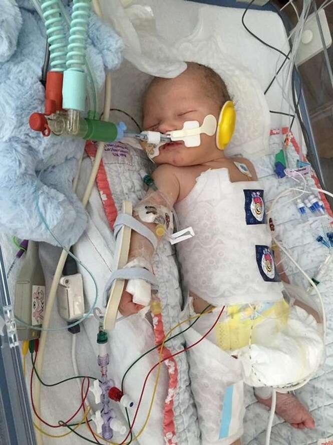 Bebê nasce morto e milagrosamente começa a respirar minutos após o parto