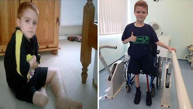 Menino de 11 anos pede amputação de sua perna após sofrer com condição de saúde