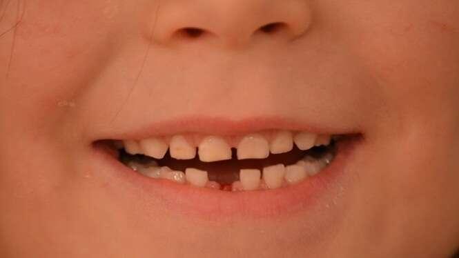 Fatos estranhos sobre os dentes que você provavelmente não sabia