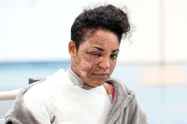 Mulher fica deformada após liquidificador explodir enquanto ela preparava alimento