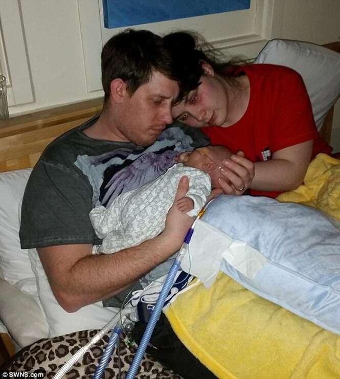 Pais tomam difícil decisão de desligar suporte de vida de um de seus bebês gêmeos recém-nascidos