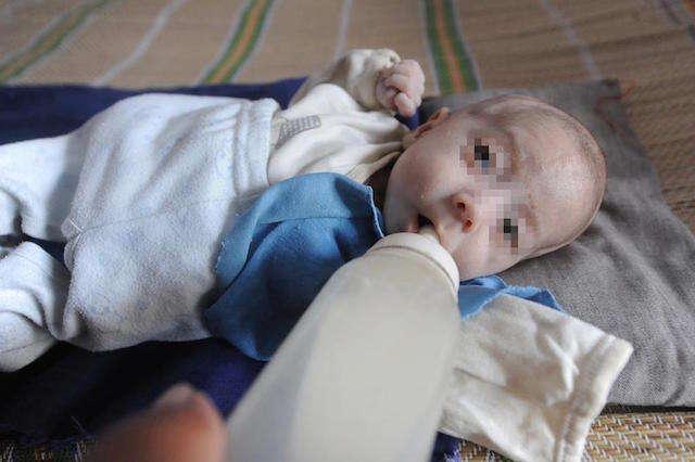 Bebê de 3 meses sofre condição rara que o fez encolher