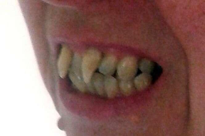 Mulher com doença grave na boca sofre com aparência