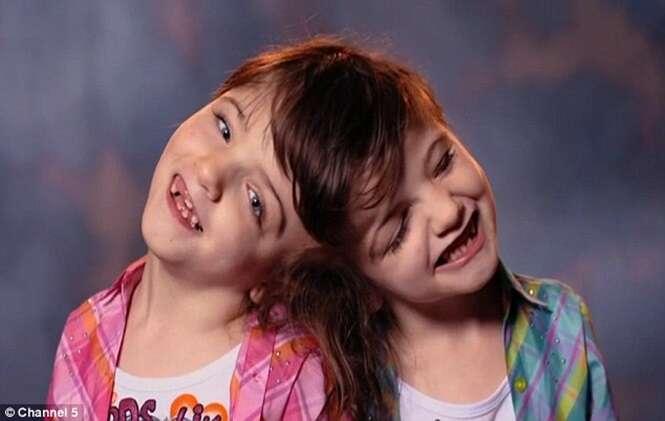 Gêmeas siamesas condenadas por médicos à morte durante a gestação superam expectativas dos médicos