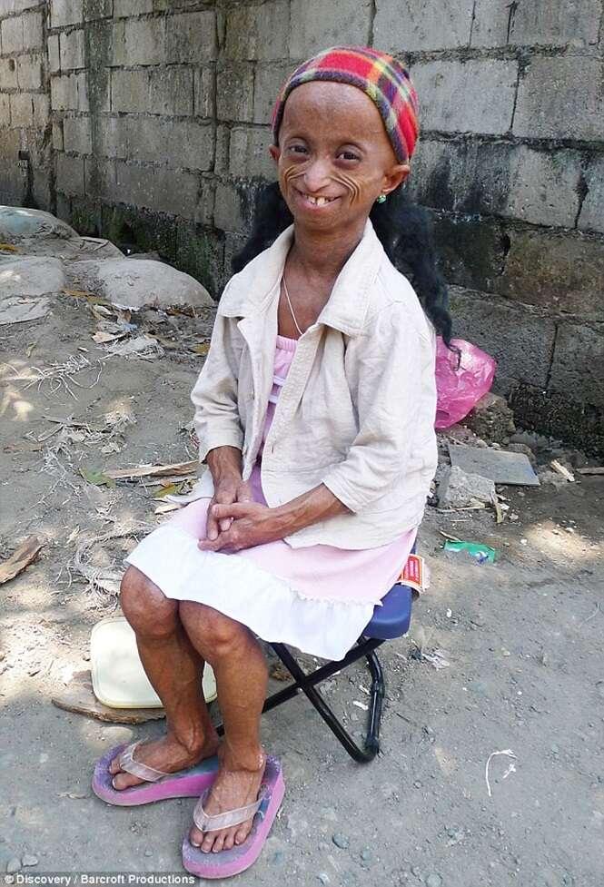 Mulher de 18 anos, com corpo de 144 devido à condição rara, fatal e incurável, viaja em busca de tratamento