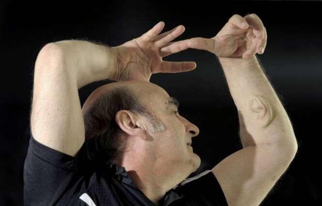 Homem implanta ouvido no braço e pretende conectá-lo à internet