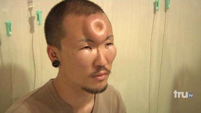 Tendência bizarra no Japão faz pessoas colocarem rosca na testa