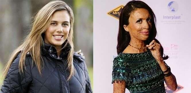 Miss Austrália que teve 70% do corpo queimado se prepara para casar com parceiro que abandonou emprego para cuidar dela