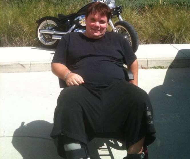 Jovem com testículos de 6 quilos implora para ganhar cirurgia que transforme sua vida
