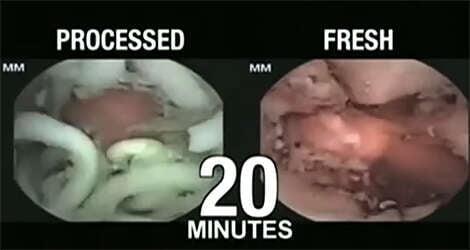 Vídeo assustador mostra o que acontece no estômago quando ingerimos macarrão instantâneo