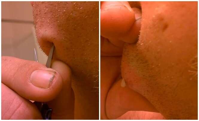 Vídeo mostra o momento em que um homem espreme caroço no rosto usando uma tesoura