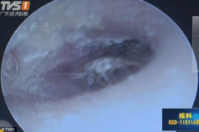 Homem vai a hospital se queixando de dores no ouvido e médicos retiram 26 baratas do local