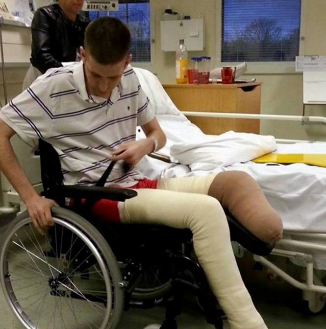 Homem perde a perna depois que amigo coloca fogo no membro