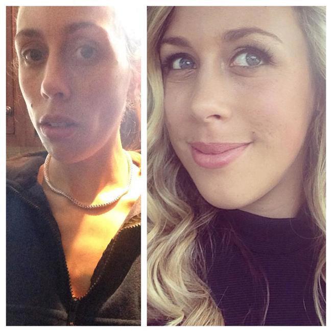 Pessoas antes e depois da anorexia