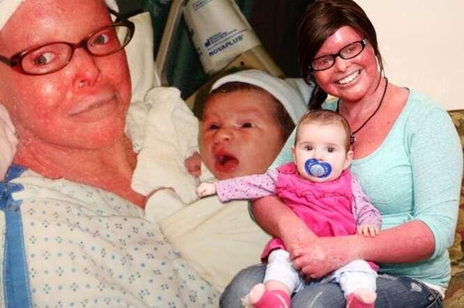 Mulher com condição de pele rara e debilitante se torna a primeira pessoa com tal doença a se tornar mãe