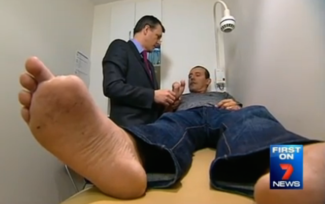 Homem tem dedos dos pés implantados nas mãos