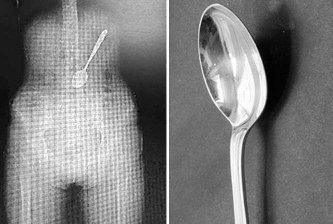 Mulher corre risco de morte ao engolir colher enquanto chupava macarrão