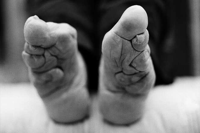 Antiga tradição chinesas que deformava pés de mulheres para poderem se casar chega ao fim