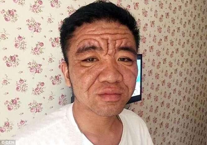 Homem de 30 anos com aparência de 80 sofre com misteriosa doença