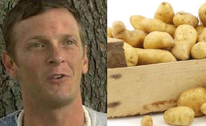 Homem com síndrome rara que o faz ficar bêbado comendo batatas é taxado pela família como alcóolatra