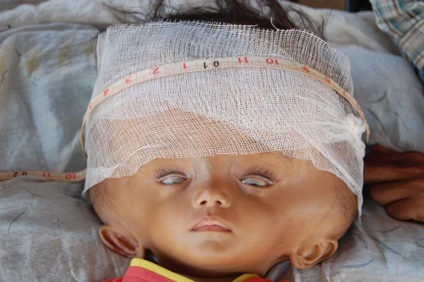 Bebê luta pela vida após sofrer crescimento desenfreado da cabeça