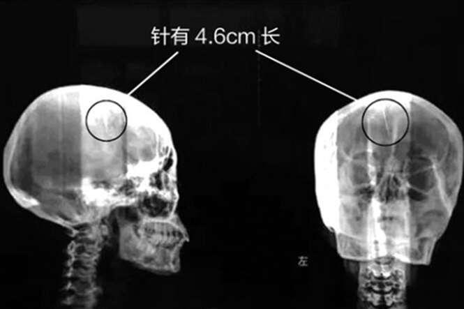 Mulher de 48 anos passa a vida toda sofrendo com dores de cabeça e descobre que possui agulha no cérebro