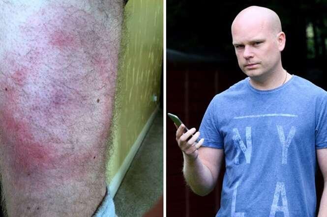 Homem desenvolve dolorosa erupção cutânea ao comprar iPhone 6