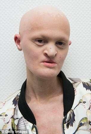 Mulher com doen a gen tica rara que a deixou careca sem dentes e parcialmente cega realiza - Mobel bald olpe offnungszeiten ...