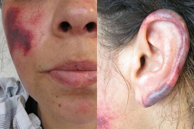 Mulher sofre terríveis efeitos após consumir cocaína