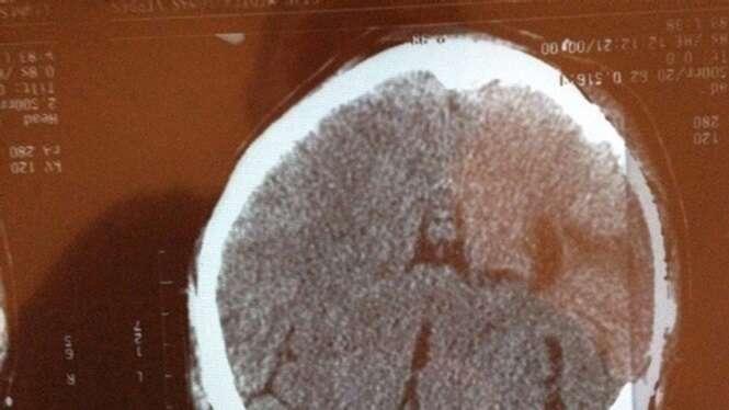 Mulher vítima de AVC encontra imagem de Jesus Cristo em raio-X de seu cérebro