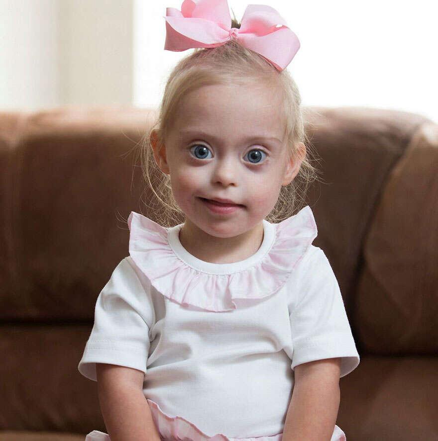 Menina com Síndrome de Down consegue contrato de modelo