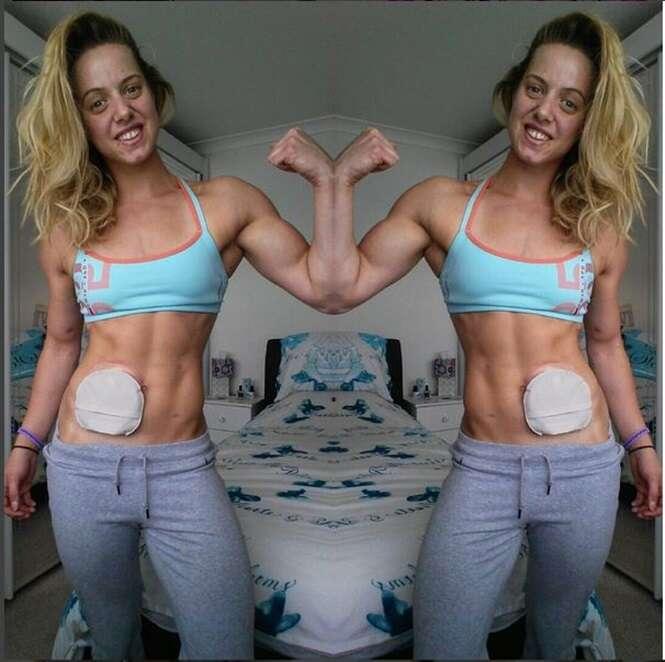 Mulher que vive com saco para saída de fezes preso em sua barriga se torna fisiculturista