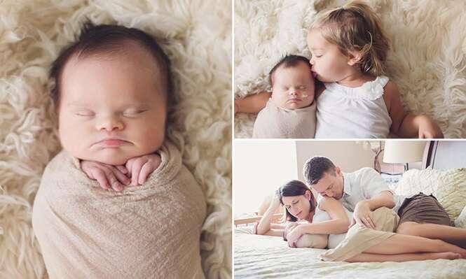 Pais fazem ensaio fotográfico comovente para retratar o pouco tempo de vida de bebê que nasceu com tumor