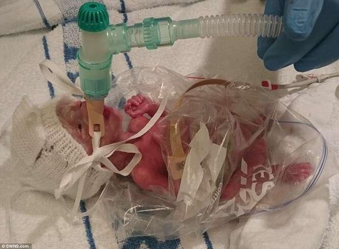 Bebê nasce prematuro e é salvo graças a saco de sanduíche