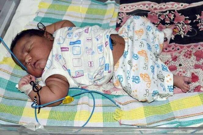 Mulher dá à luz bebê de 6 quilos na Índia