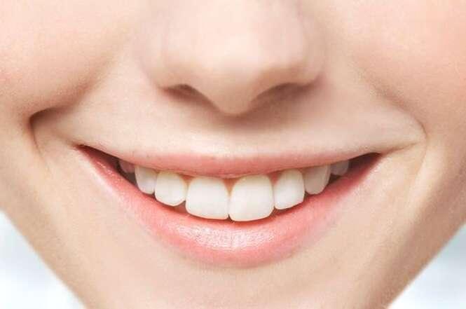 Especialista ensina quais alimentos saudáveis ajudam a clarear os dentes