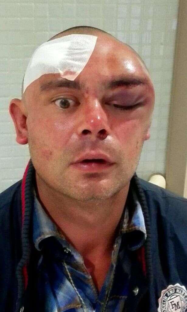 Vídeo flagra momento em que homem é brutalmente atacado por suposto canibal