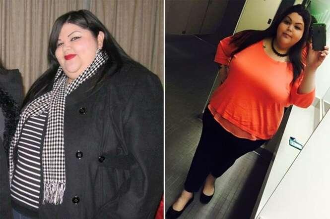 Mulher que se tornou obesa passa por cirurgia para remover 80% de seu estômago