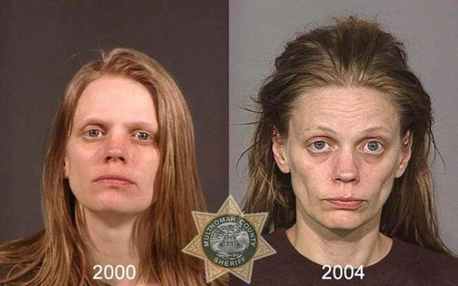 Imagens chocantes comparam o antes e o depois de pessoas que se tornaram viciadas em drogas