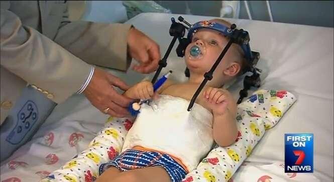 Cabeça de bebê se desprende do pescoço e é milagrosamente recolocada com sucesso em cirurgia