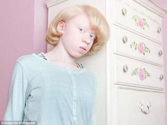 Imagens que mostram como pessoas com albinismo são incrivelmente belas
