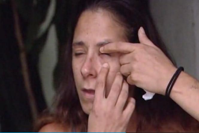 Mulher pinga cola de fixação de unha no olho ao confundir produto com colírio