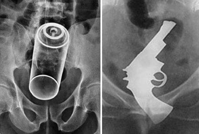 Exames de raio-X feitos em pacientes que se deram mal tentando conseguir prazer íntimo
