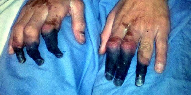 Você sabe por que ainda existe peste negra nos EUA?