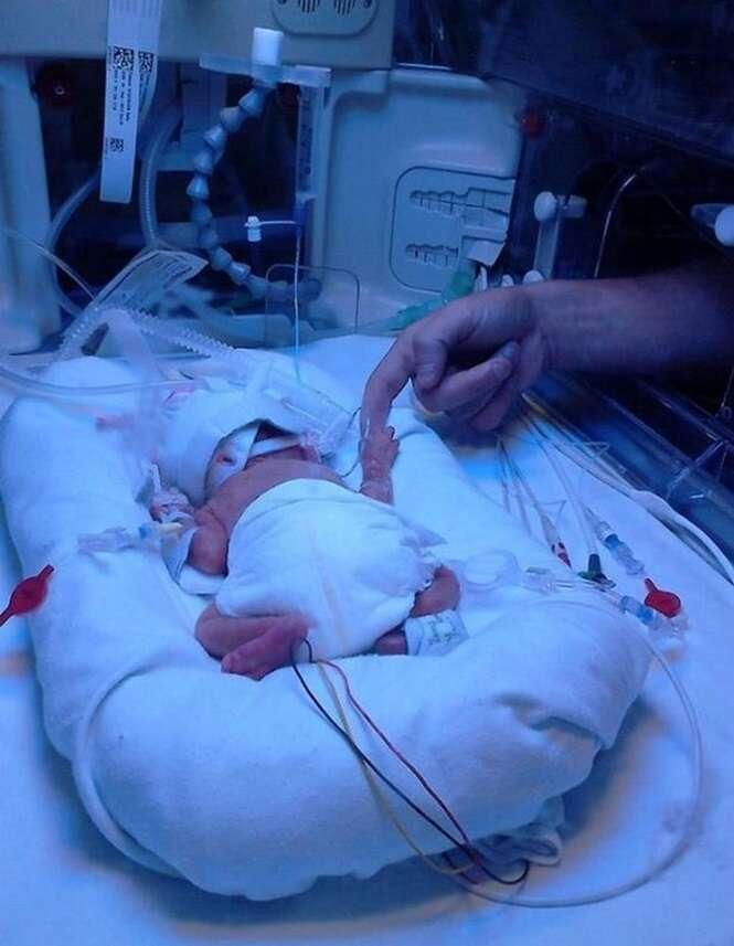 Grávida aconselhada a abortar bebê para evitar que ele nascesse com síndrome de Down, recusa pedido e criança completa 1 ano saudável